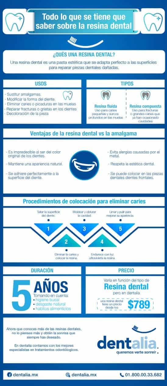 Resina dental: todo lo que tienes que saber en esta infografía